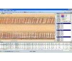 年輪分析儀,年輪分析系統